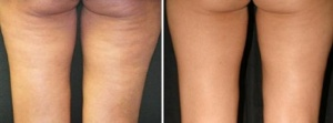 No, this is NOT me, but this shows how effective the Venus Freeze can be in reducing the appearance of cellulite.