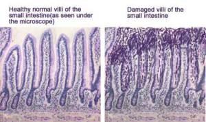 celiac-disease-villi