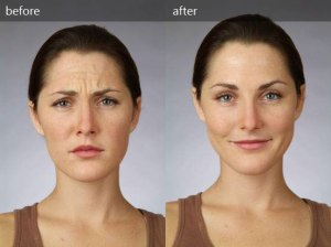 botox-before-and-after