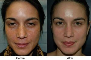 Before and after images from a single Vi-Peel treatment
